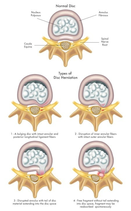 Continuum of disc injuries, top view - Lumbar Disc Injuries - Revive Physiotherapy and Pilates
