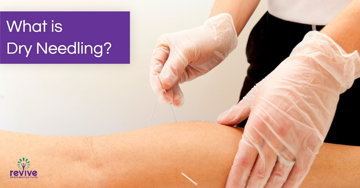 What is Dry Needling - Revive Physiotherapy and Pilates