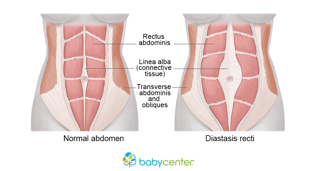 Post-Natal Assessments - Diastasis Recti - Revive Physiotherapy and Pilates