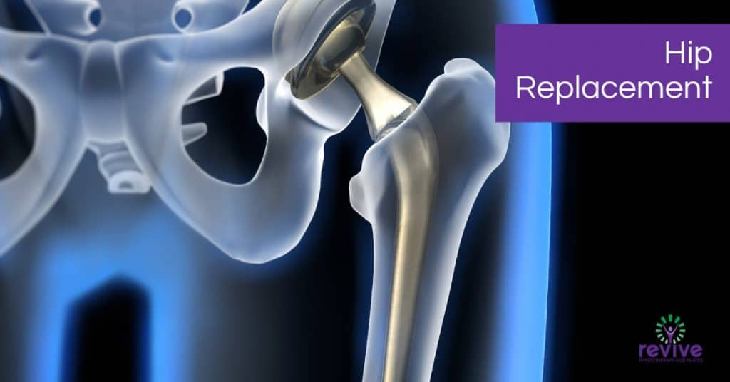 Hip Replacement - Revive Physiotherapy and Pilates